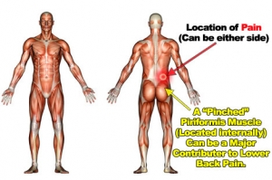 location of back pain